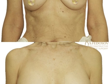 Коррекция формы и объёма молочных желёз имплантами 410 мл.
