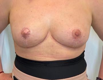 Вторичная операция после увеличения груди с редукционной мастопексией