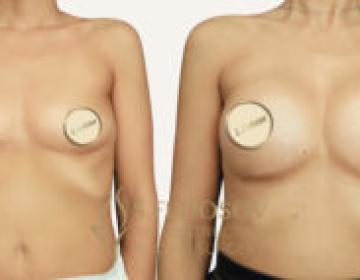 Увеличение молочных желез имплантами