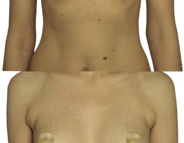 Аугментационная маммопластика имплантами 315 мл.