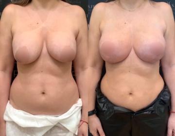 Вторичная хирургия молочных желёз