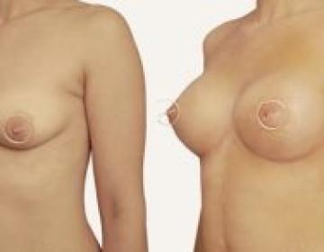 Увеличивающая маммопластика с периареолярной мастопексией