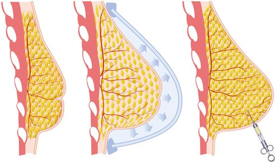 rekonstrukciya-grudi-v-spb-hirurgiya-fedosov-semen-sling-obem