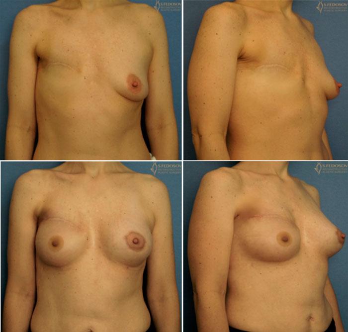 реконструкция-груди