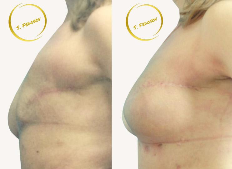 Двухэтапная отсроченная реконструкция правой молочной железы, сумметризирующая аугментация левой молочной железы