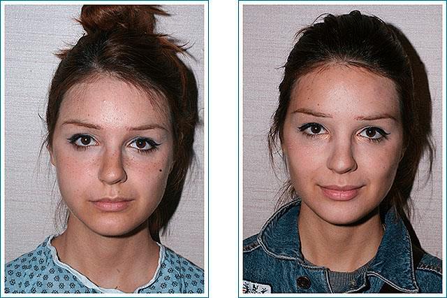 foto-do-i-posle-udaleniya-komkov-bisha