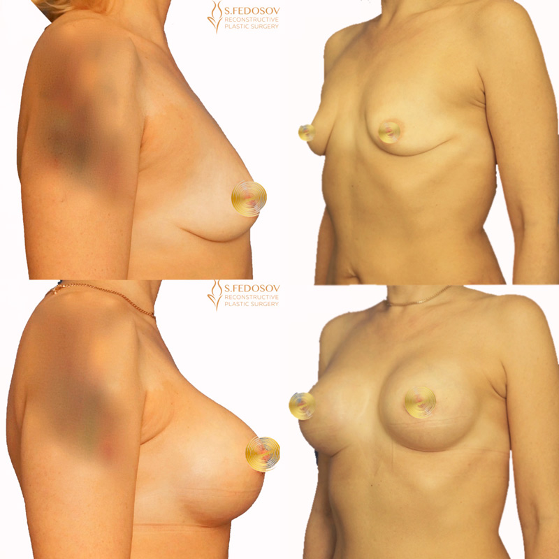 Коррекция-формы-и-объёма-молочных-желёз-имплантами-1