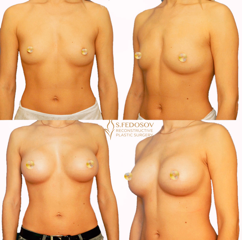 увеличение-груди-федосов-хирург