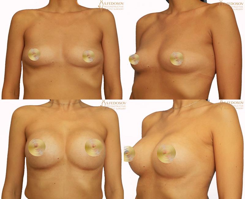 увеличение-груди-федосов