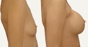 mammoplastika-grudi-do-posle