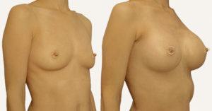 mammoplastika-grudi-rezultaty