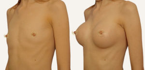 mammoplastika-grudi-fedosov