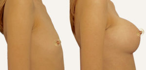 mammoplastika-grudi-fedosov-semen