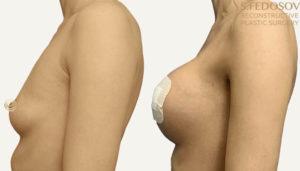 plasticheskaya-operaciya-grud-rezultaty
