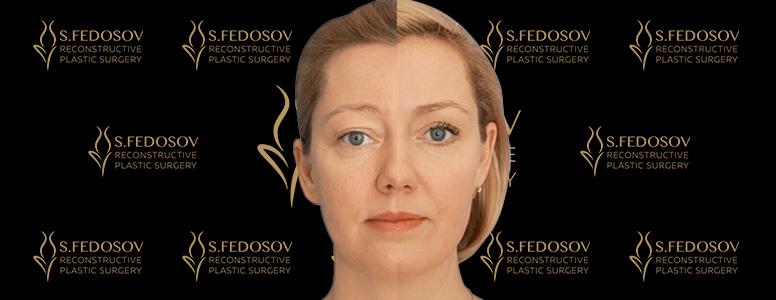 пластика лица федосов хирург