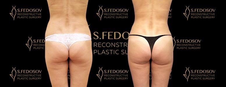 пластическая операция рами