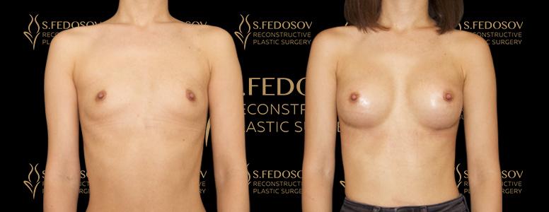 фотографии работ до и после маммопластики