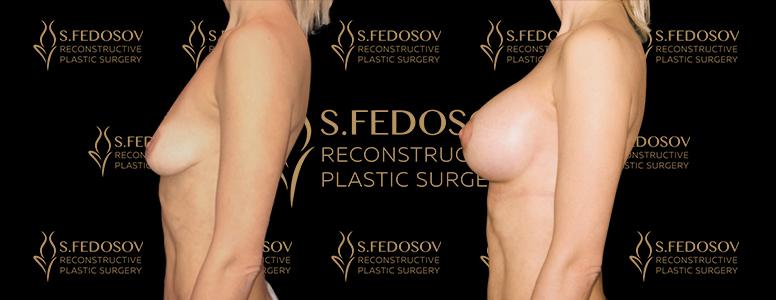 результаты работ по увеличению груди вид сбоку
