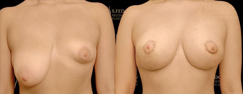 реконструкция груди при помощи хирургии
