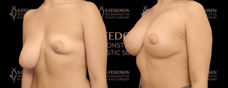 реконструкция груди вид сбоку