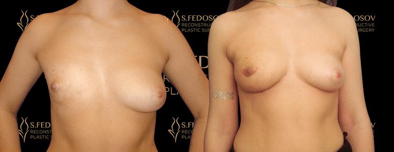 реконструкция груди в клинике рами