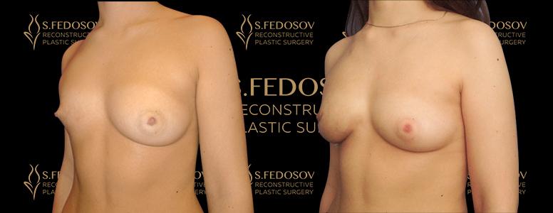 фотографии до и после реконструкции груди