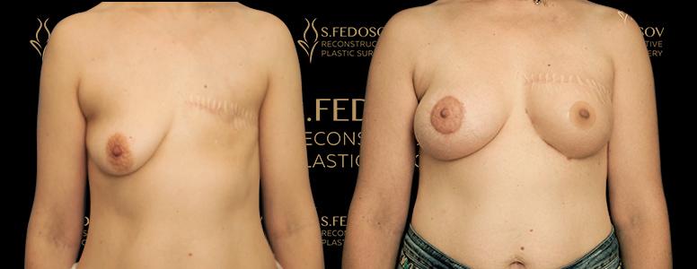 реконструкция левой молочной железы