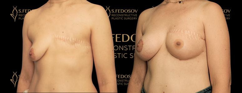 реконструкция левой молочной железы вид сбоку