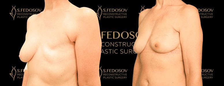 реконструкция левой молочной железы фото