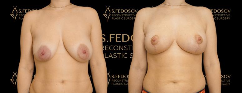 результаты работ по увеличению груди