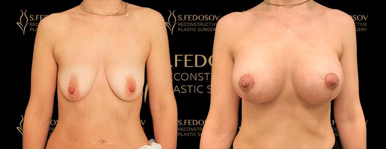 результаты работ по маммопластике