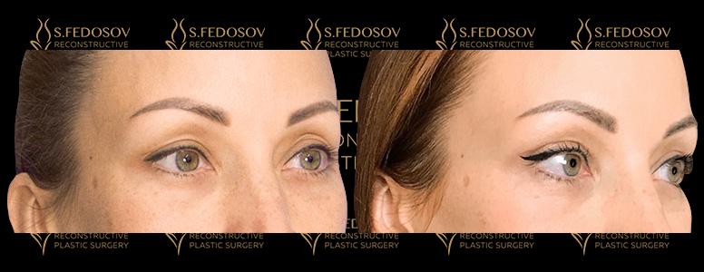 фотографии до и после операции