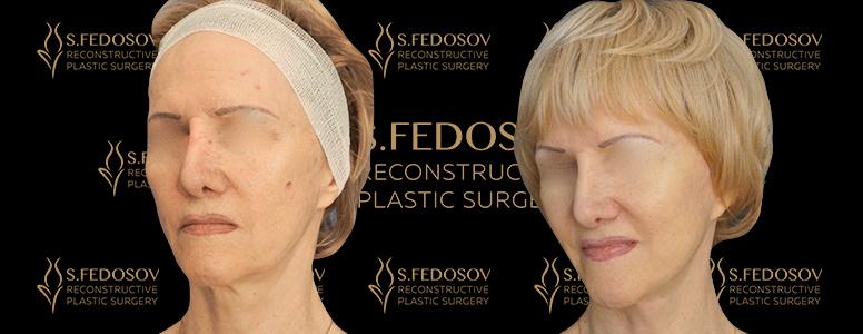 пластика лица результаты