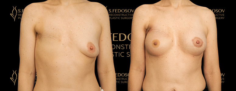 реконструкция груди фото до и после