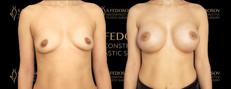 увеличение груди в спб фото