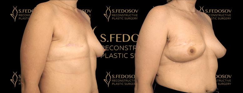 реконструкция груди хирурга федосова семена